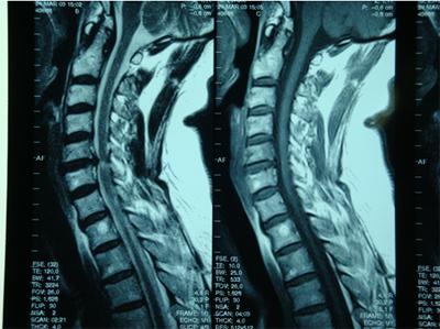 劲椎手术图谱