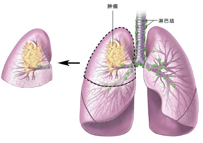 小细胞肺癌临床症状